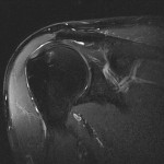 Coronal Shoulder MRI