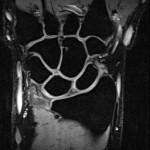 Coronal Wrist MRI
